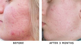 acne on girls face before and after acne dpl treatments. Black Bedroom Furniture Sets. Home Design Ideas